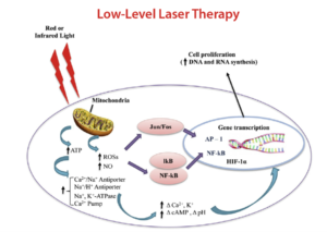 Low-Level Light (Laser) Therapy
